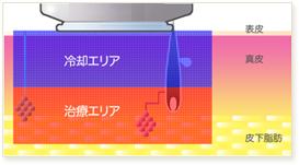 ミラドライの冷却システムは、ハイドロセラミック・クーリングによって表皮から真皮にかけて冷却していきます。